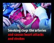Smoking clogs the arteries and causes heart attacks and strokes