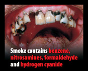 Smoking contains benzene, nitrosamines, formaldehyde and hydrogen cyanide